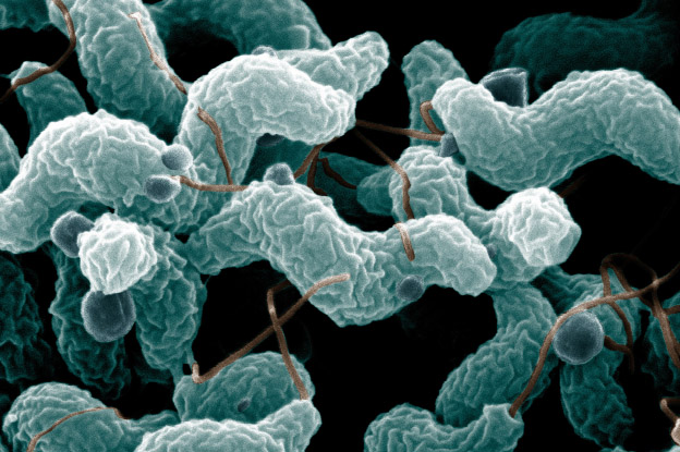 An image of Campylobacter